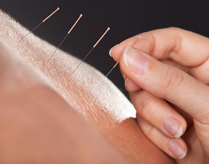 Acupuncture is an important part of Chinese medicine.